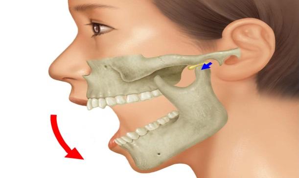 大きくあかなければ、顎関節症? – 八潮駅前通り歯科医院 埼玉県八潮市の歯医者